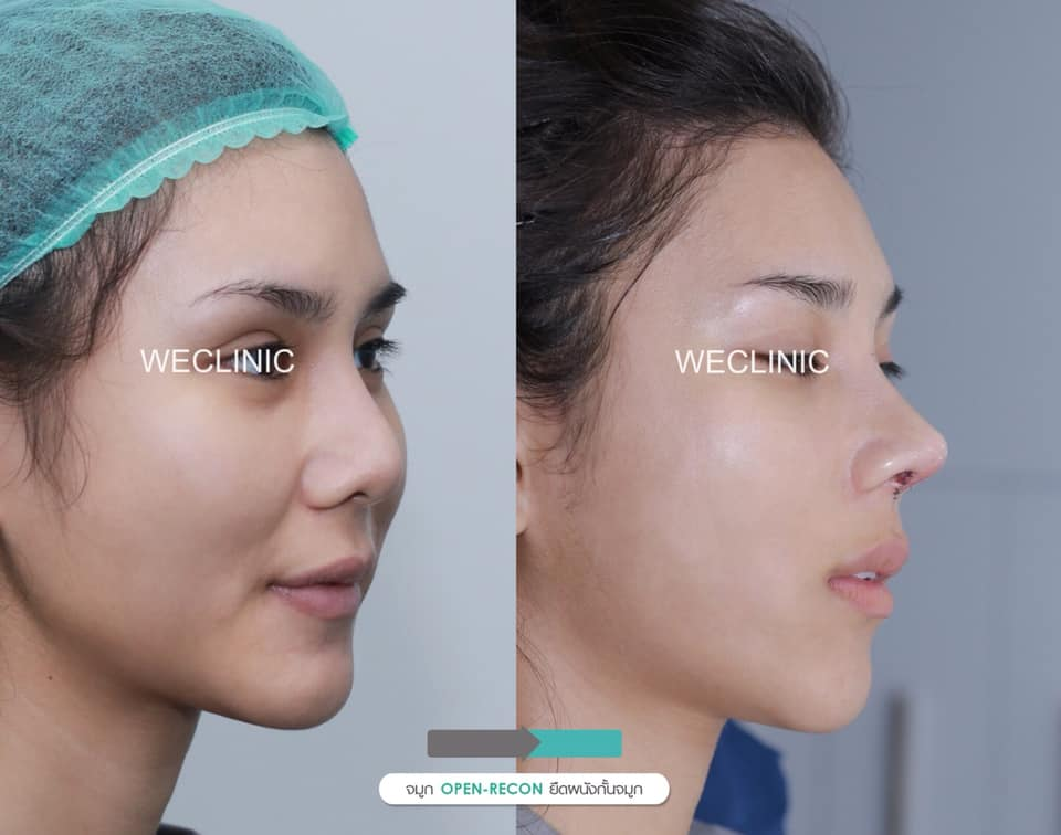 Open Structural Rhinoplasty with Septal extension technique and nasal hump reduction with silicone implant augmentation