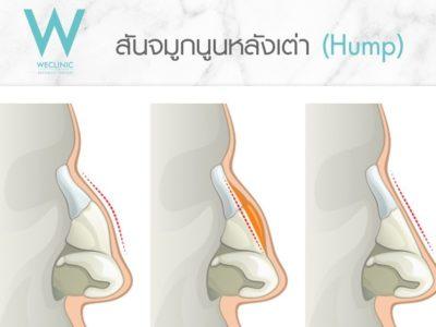 ตอกฮัมพ์ Humpectomy Osteotomy