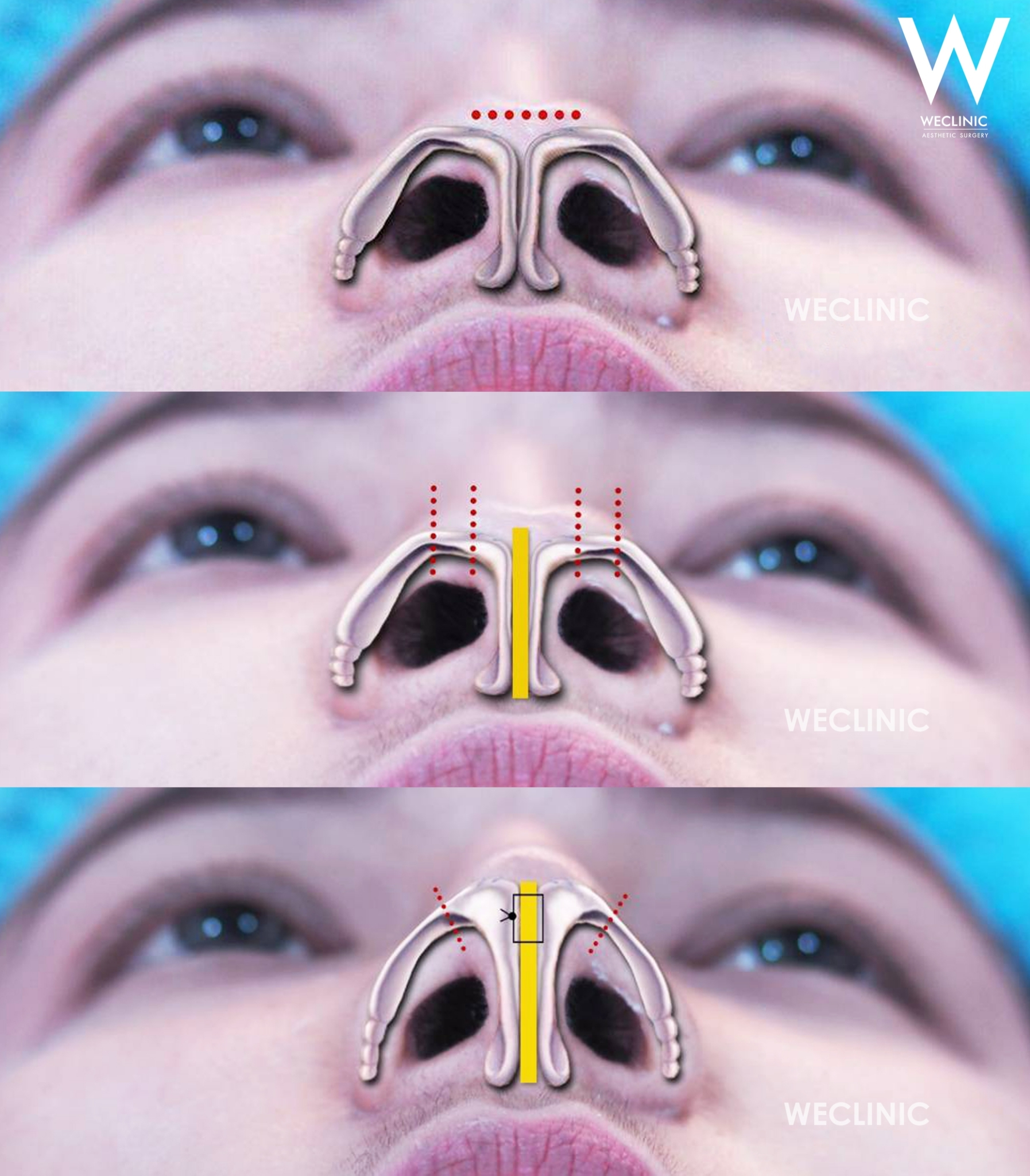 ยืดผนังกั้นจมูก ตั้งแกน Septum Extension