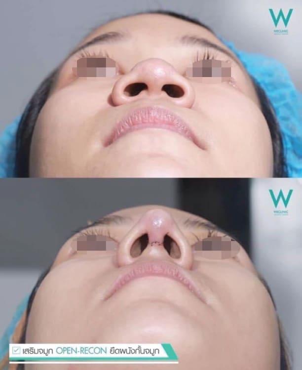 interdome-nose-จมูกเรียวสวย
