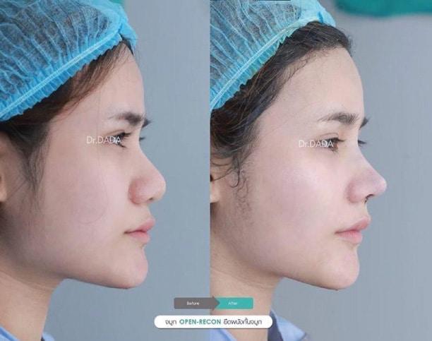 interdome nose